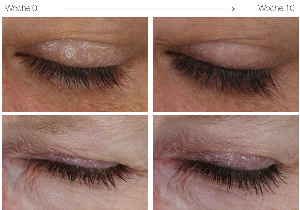 beautylash-eyelash-growth-booster-vorher-nachher
