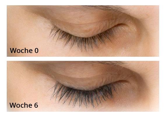 wimpern vor und nach der beahndlung mit dem beautylash wimpern serum der eyelash growth booster. Black Bedroom Furniture Sets. Home Design Ideas